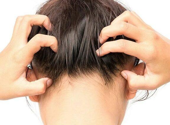 Łupież, a wypadanie włosów