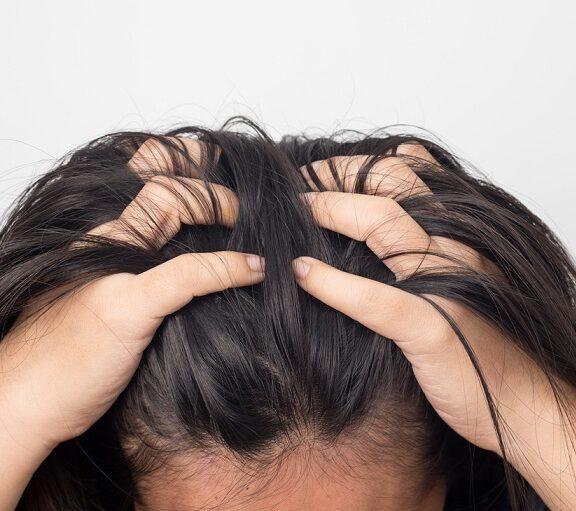 Trichotillomania wyrywanie włosów